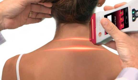 XLR8® Laser for Pain Relief | Erchonia® Lasers
